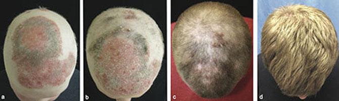 Paciente de 25 años con alopecia universalis y psoriasis a) antes del tratamiento con tofacitinib b) dos meses con terapia c) cinco meses con tratamiento, y d) ocho meses después. (Brett A. King et al.)