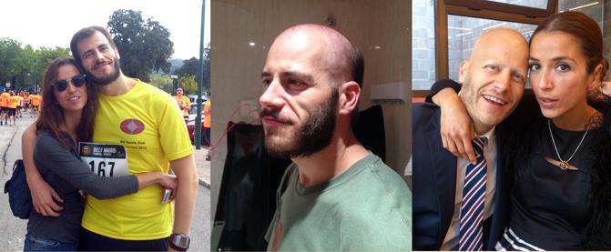 Miguel Ángel Martínez con su novia Sara hace poco más de un año; cuando comenzó con la pérdida de su cabello; y pocas semanas antes de desaparecer todo su vello. (Miguel Ángel Martínez)