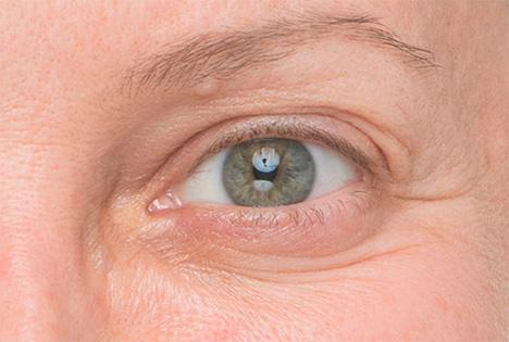 Antes del tratamiento con la crema antienvejecimiento de IT Cosmetics