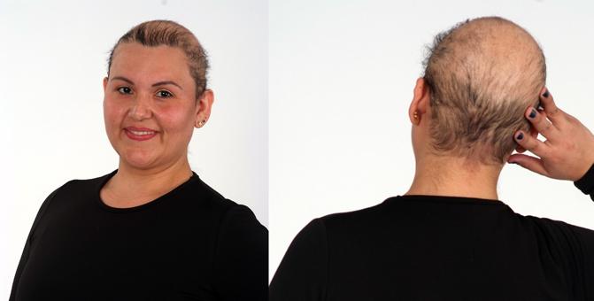 Ana Rita Arenas -Anne- perdió el 90% de su cabello con 10 años. Tiene alopecia totalis. (Imagen Digital Fotógrafos)